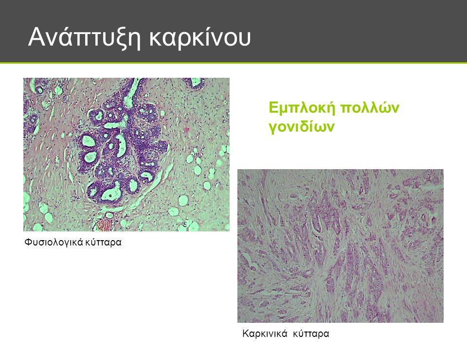 Ανάπτυξη καρκίνου Εμπλοκή πολλών γονιδίων Φυσιολογικά κύτταρα