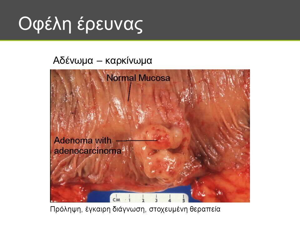 Οφέλη έρευνας Αδένωμα – καρκίνωμα