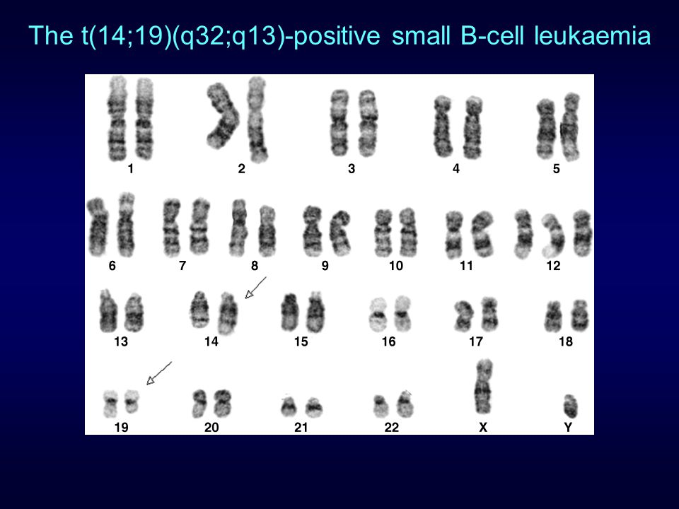 The t(14;19)(q32;q13)-positive small B-cell leukaemia