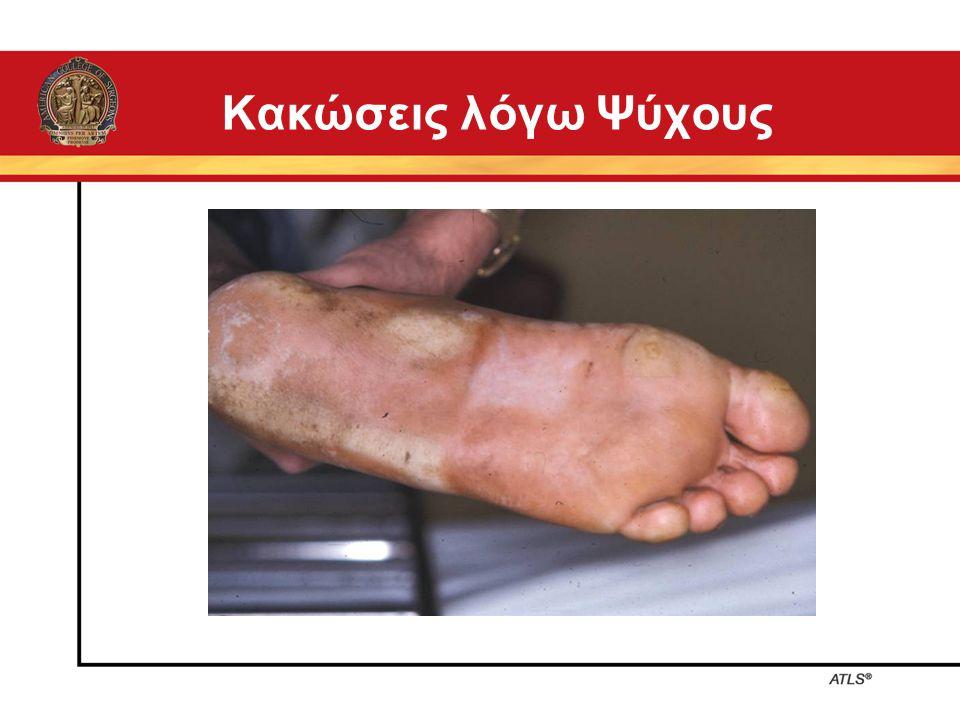 Κακώσεις λόγω Ψύχους 9-22 Cold Injuries