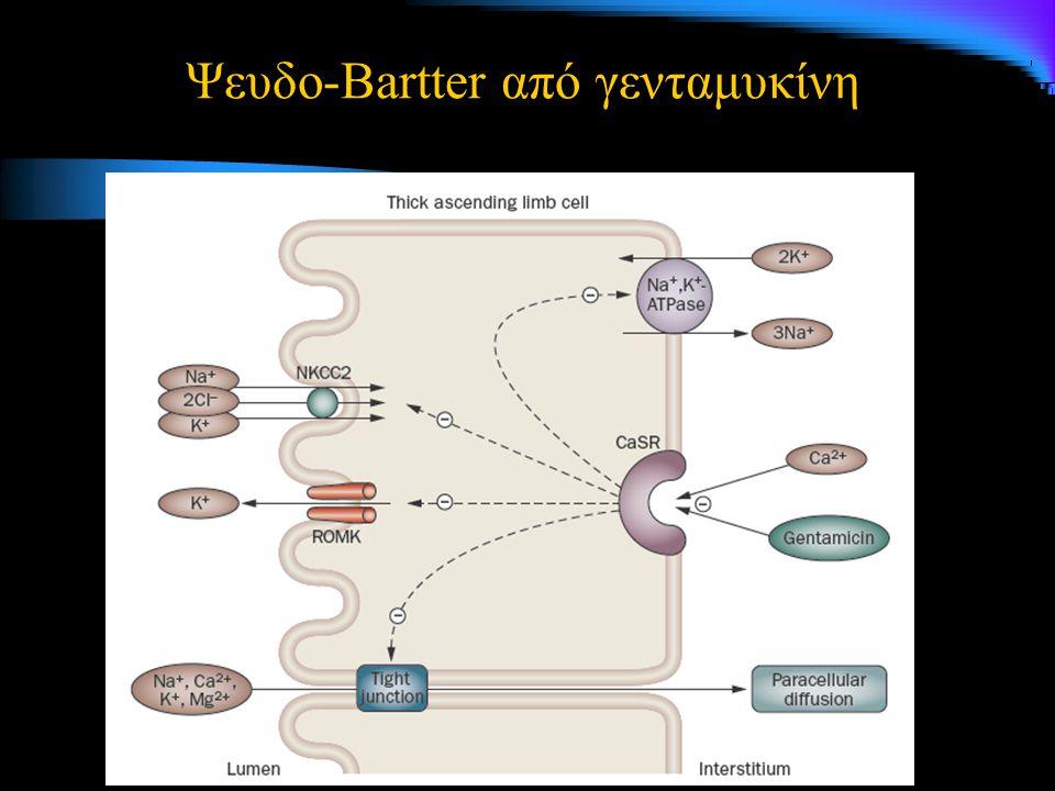 Ψευδο-Bartter από γενταμυκίνη