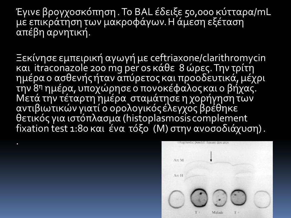 Έγινε βρογχοσκόπηση . Το BAL έδειξε 50,000 κύτταρα/mL με επικράτηση των μακροφάγων. Η άμεση εξέταση απέβη αρνητική.