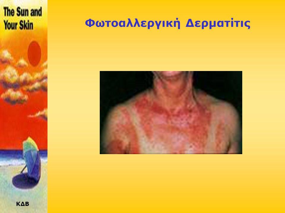 Φωτοαλλεργική Δερματίτις