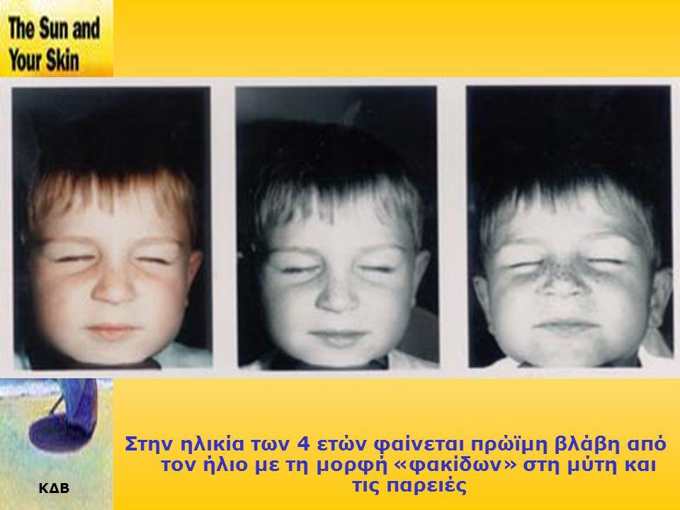 Στην ηλικία των 4 ετών φαίνεται πρώϊμη βλάβη από τον ήλιο με τη μορφή «φακίδων» στη μύτη και τις παρειές