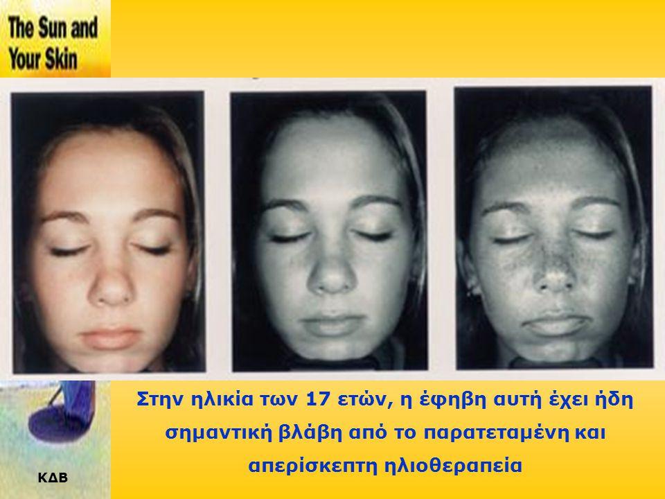 Στην ηλικία των 17 ετών, η έφηβη αυτή έχει ήδη σημαντική βλάβη από το παρατεταμένη και απερίσκεπτη ηλιοθεραπεία