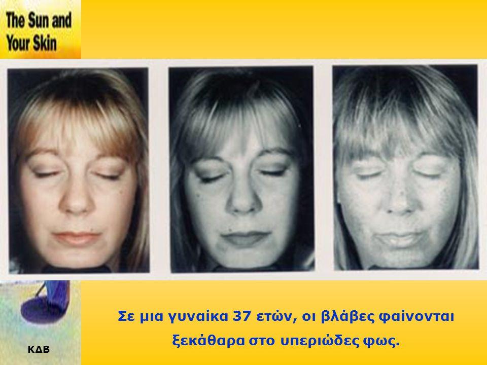Σε μια γυναίκα 37 ετών, οι βλάβες φαίνονται ξεκάθαρα στο υπεριώδες φως.