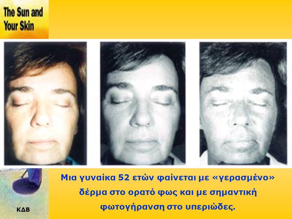 Μια γυναίκα 52 ετών φαίνεται με «γερασμένο» δέρμα στο ορατό φως και με σημαντική φωτογήρανση στο υπεριώδες.