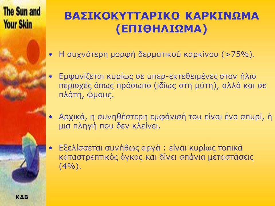ΒΑΣΙΚΟΚΥΤΤΑΡΙΚΟ ΚΑΡΚΙΝΩΜΑ (ΕΠΙΘΗΛΙΩΜΑ)