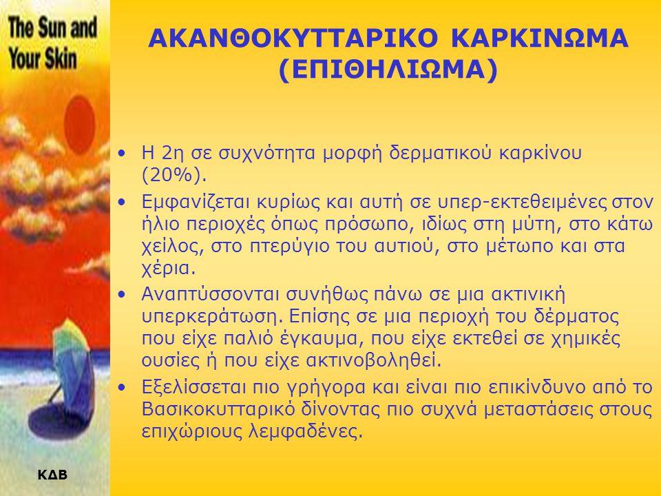 ΑΚΑΝΘΟΚΥΤΤΑΡΙΚΟ ΚΑΡΚΙΝΩΜΑ (ΕΠΙΘΗΛΙΩΜΑ)