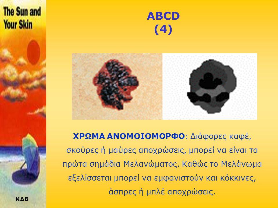 ABCD (4)