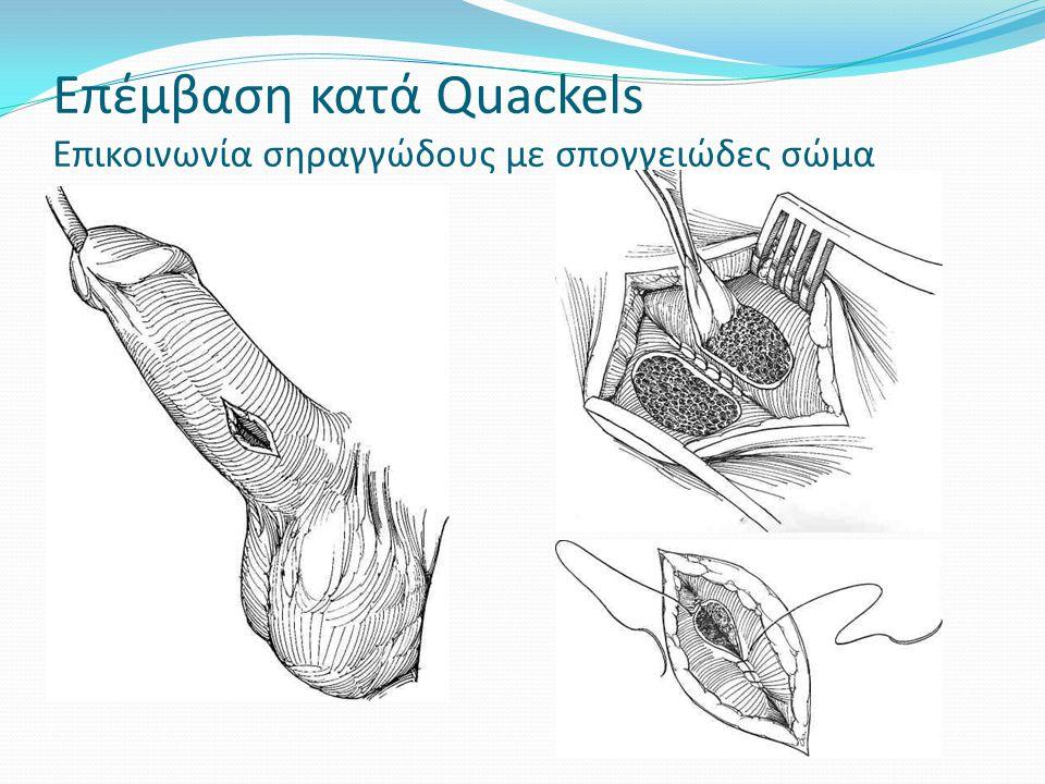 Επέμβαση κατά Quackels Επικοινωνία σηραγγώδους με σπογγειώδες σώμα