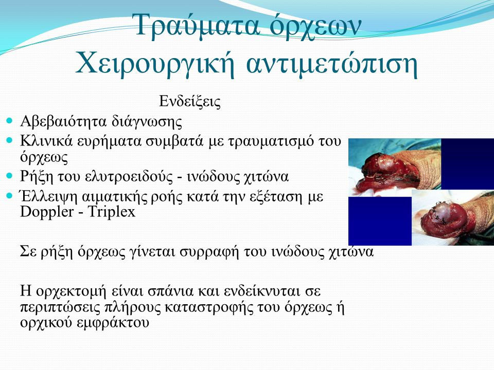 Τραύματα όρχεων Χειρουργική αντιμετώπιση