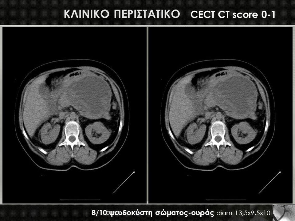 ΚΛΙΝΙΚΟ ΠΕΡΙΣΤΑΤΙΚΟ CECT CT score 0-1