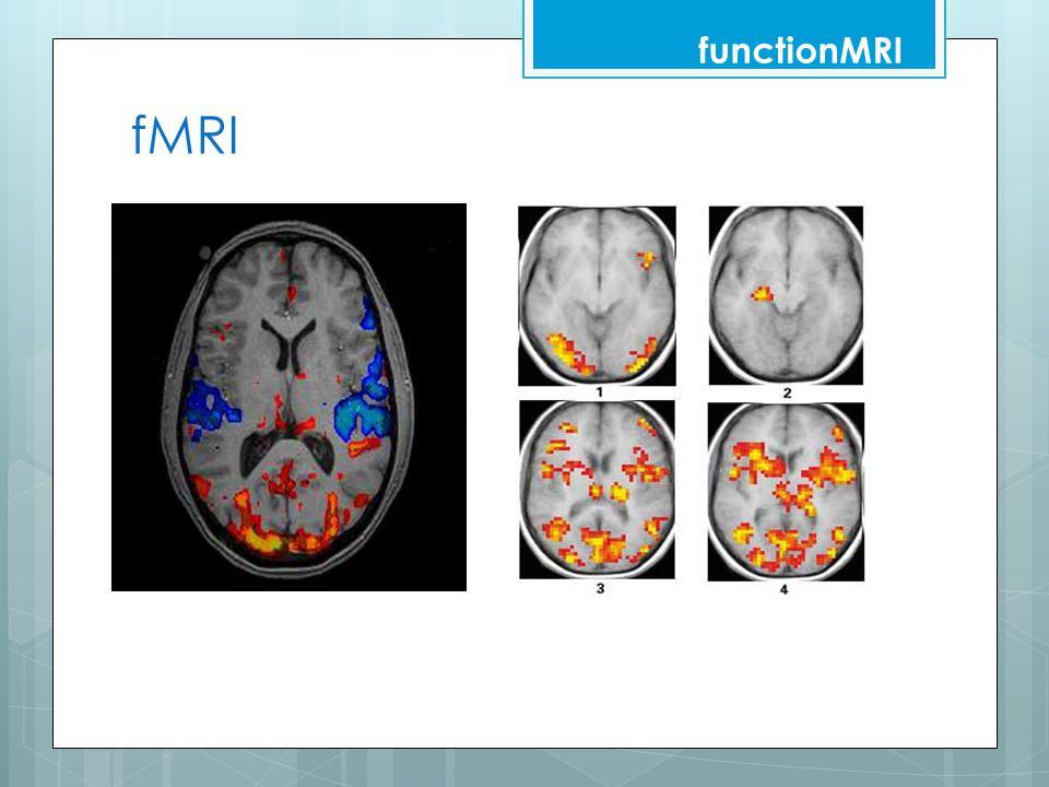 functionMRI fMRI