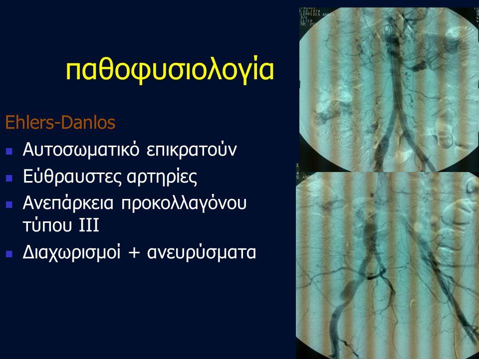 παθοφυσιολογία Ehlers-Danlos Αυτοσωματικό επικρατούν