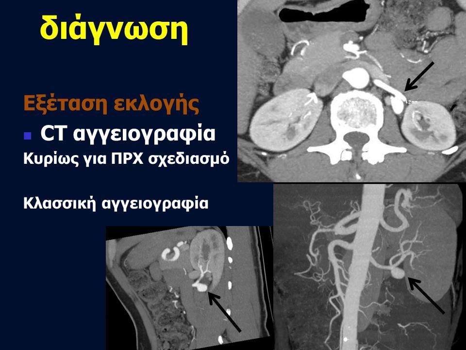 διάγνωση Εξέταση εκλογής CT αγγειογραφία Κυρίως για ΠΡΧ σχεδιασμό