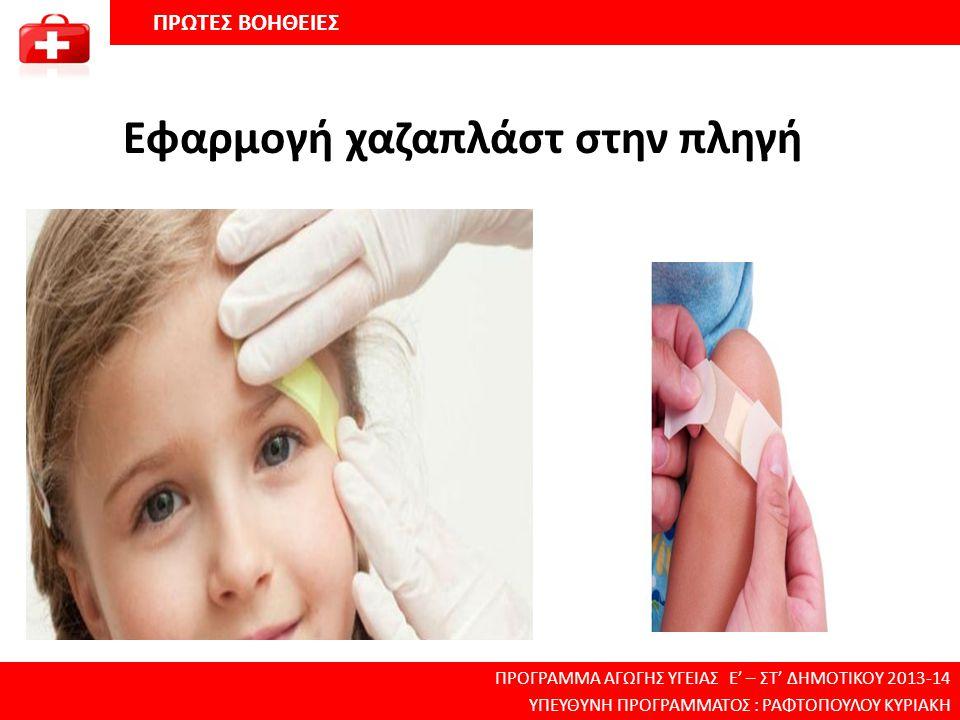 Εφαρμογή χαζαπλάστ στην πληγή