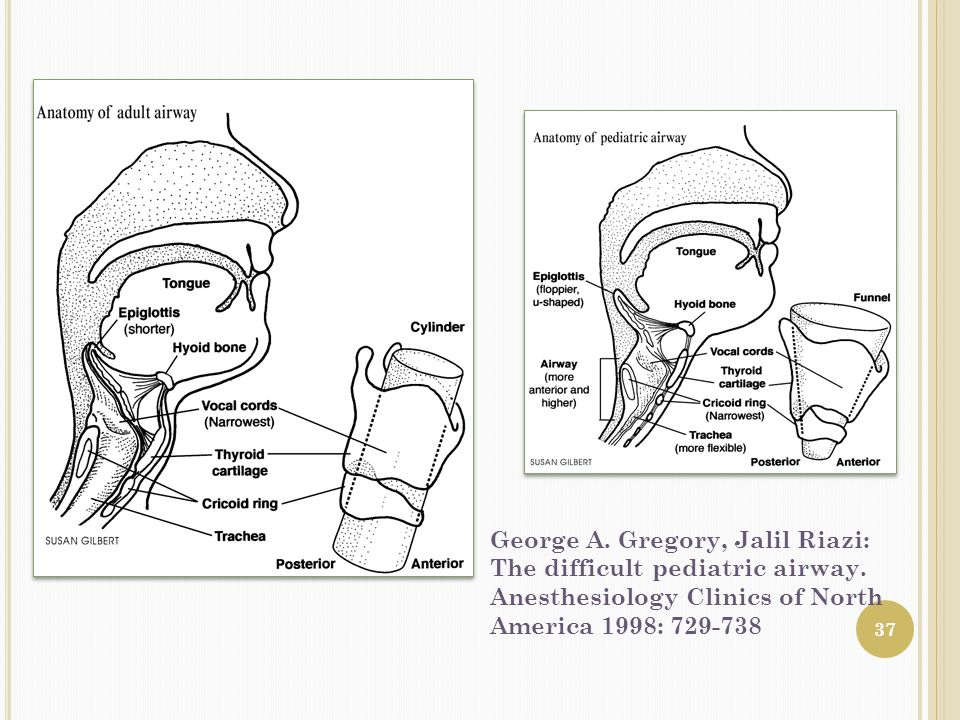 George A. Gregory, Jalil Riazi: The difficult pediatric airway.