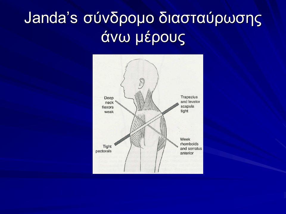 Janda's σύνδρομο διασταύρωσης άνω μέρους