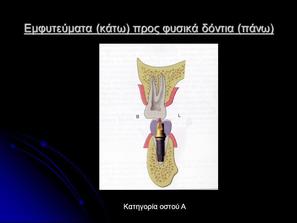 Εμφυτεύματα (κάτω) προς φυσικά δόντια (πάνω)