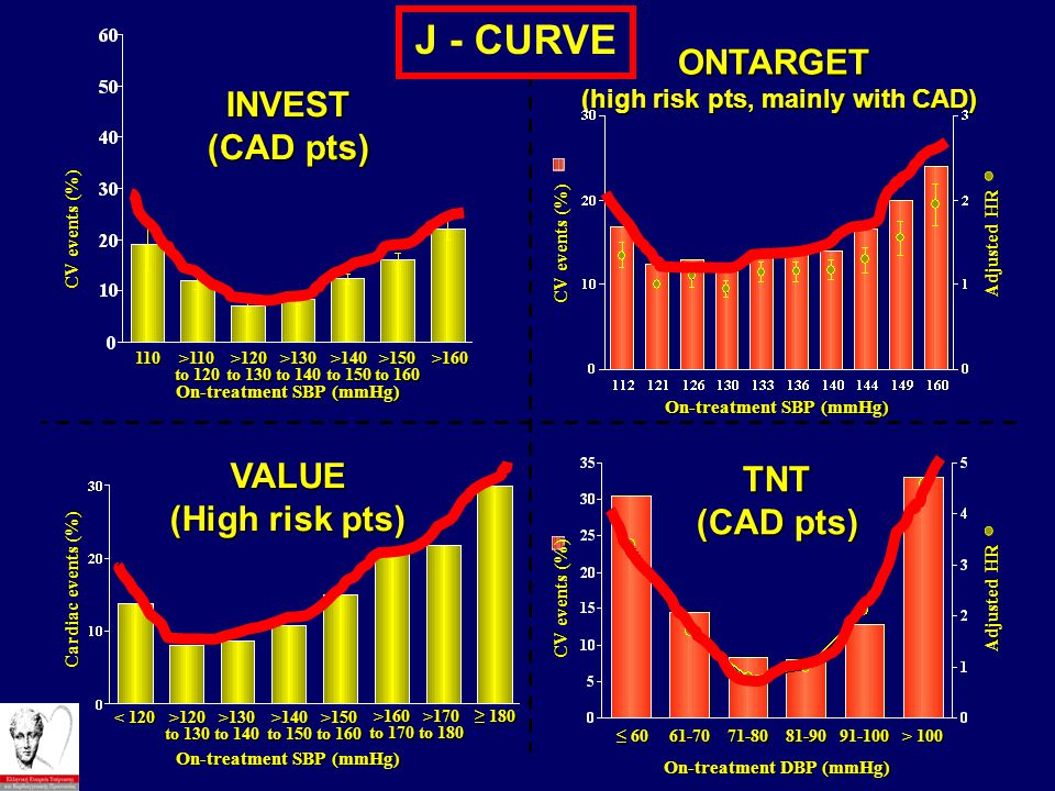 J - CURVE ONTARGET INVEST (CAD pts) VALUE TNT (High risk pts)