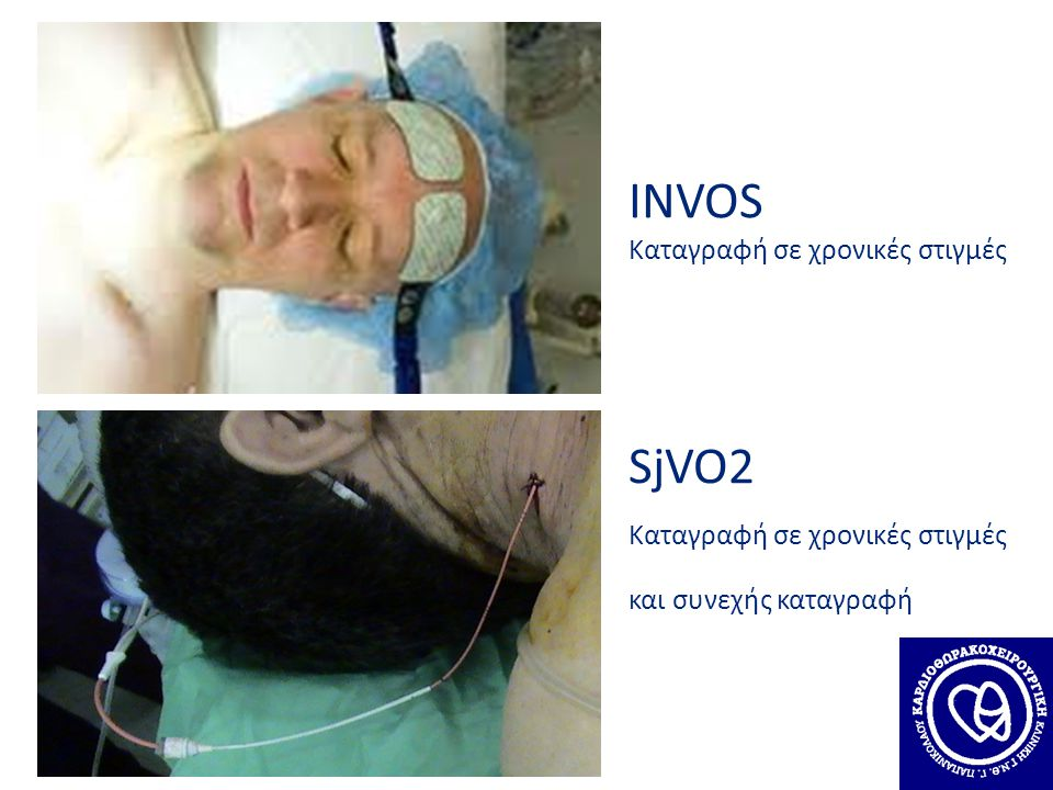 INVOS SjVO2 Καταγραφή σε χρονικές στιγμές