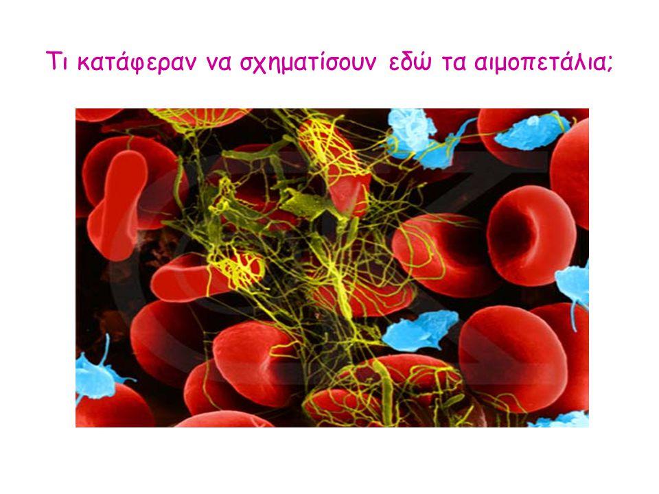 Τι κατάφεραν να σχηματίσουν εδώ τα αιμοπετάλια;