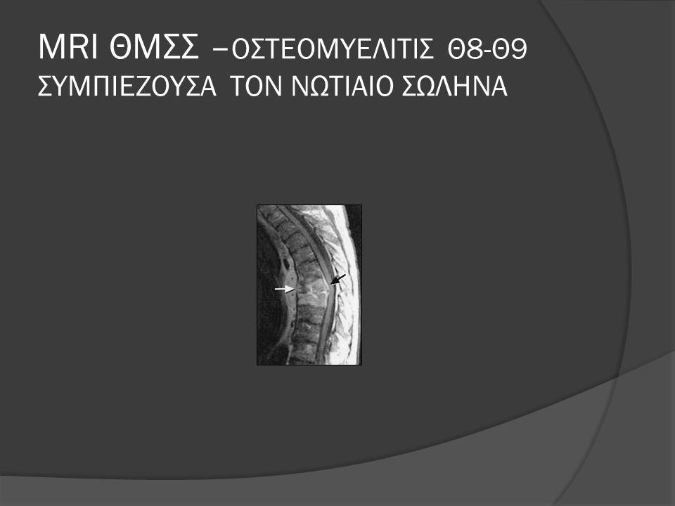 MRI ΘΜΣΣ –ΟΣΤΕΟΜΥΕΛΙΤΙΣ Θ8-Θ9 ΣΥΜΠΙΕΖΟΥΣΑ ΤΟΝ ΝΩΤΙΑΙΟ ΣΩΛΗΝΑ