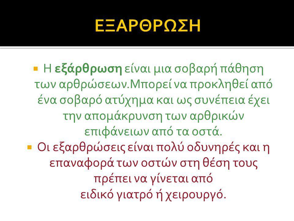 ΕΞΑΡΘΡΩΣΗ