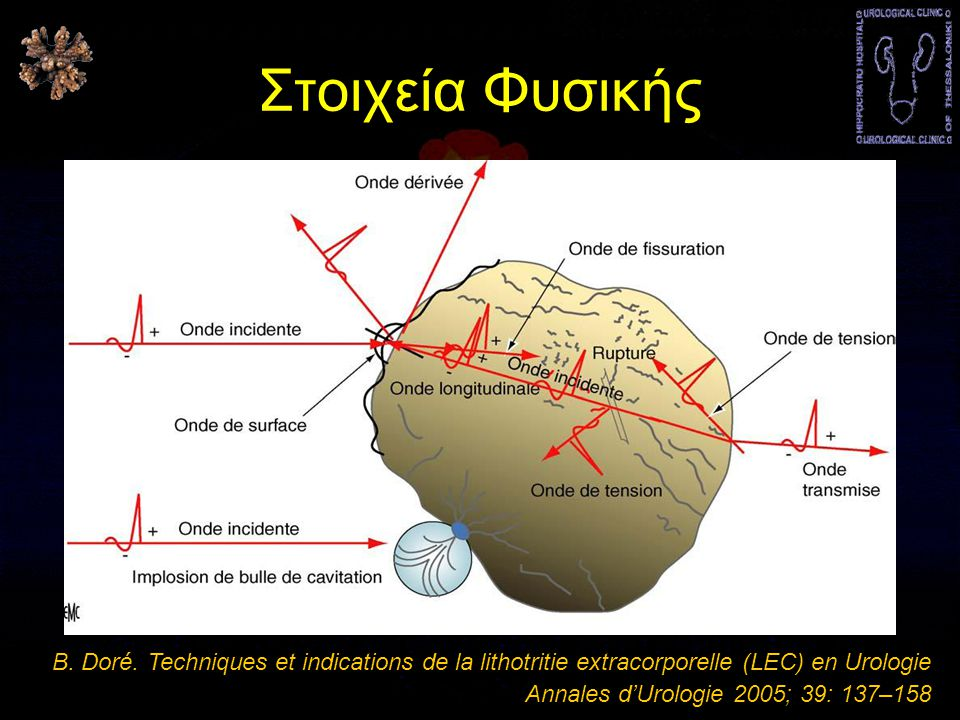 Στοιχεία Φυσικής B. Doré. Techniques et indications de la lithotritie extracorporelle (LEC) en Urologie.