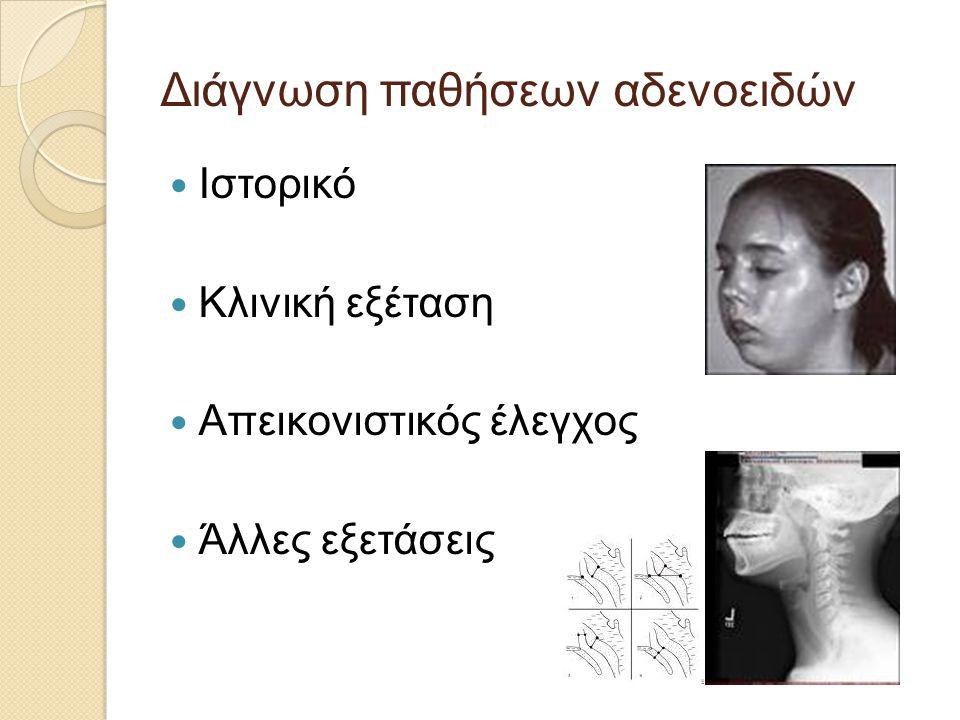 Διάγνωση παθήσεων αδενοειδών