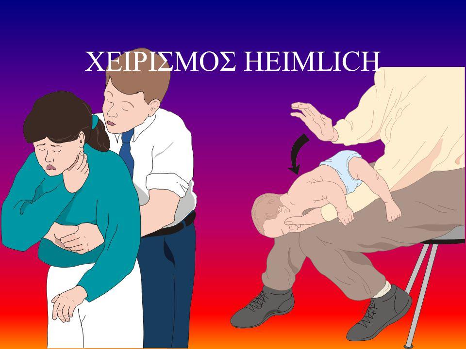 ΧΕΙΡΙΣΜΟΣ HEIMLICH