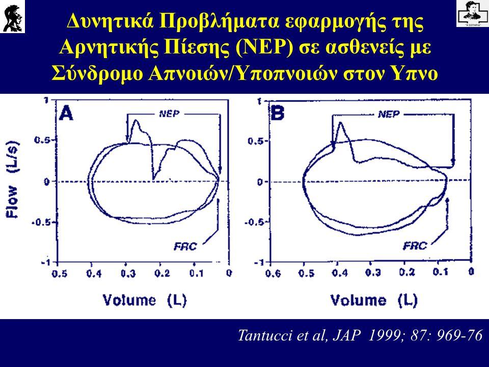 Δυνητικά Προβλήματα εφαρμογής της Αρνητικής Πίεσης (NEP) σε ασθενείς με Σύνδρομο Απνοιών/Υποπνοιών στον Υπνο