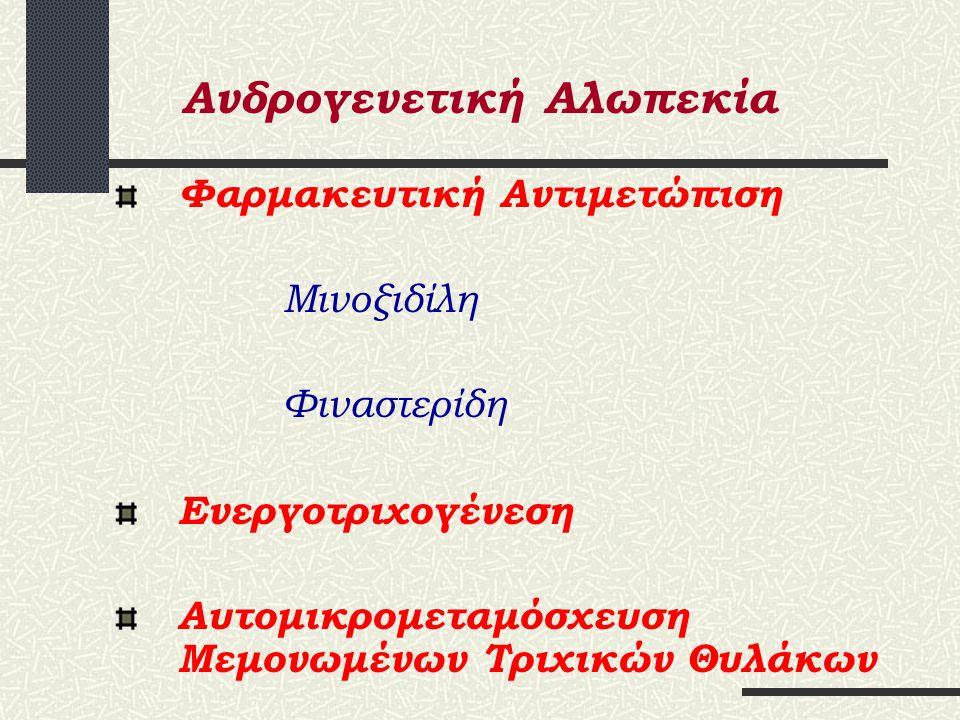 Ανδρογενετική Αλωπεκία