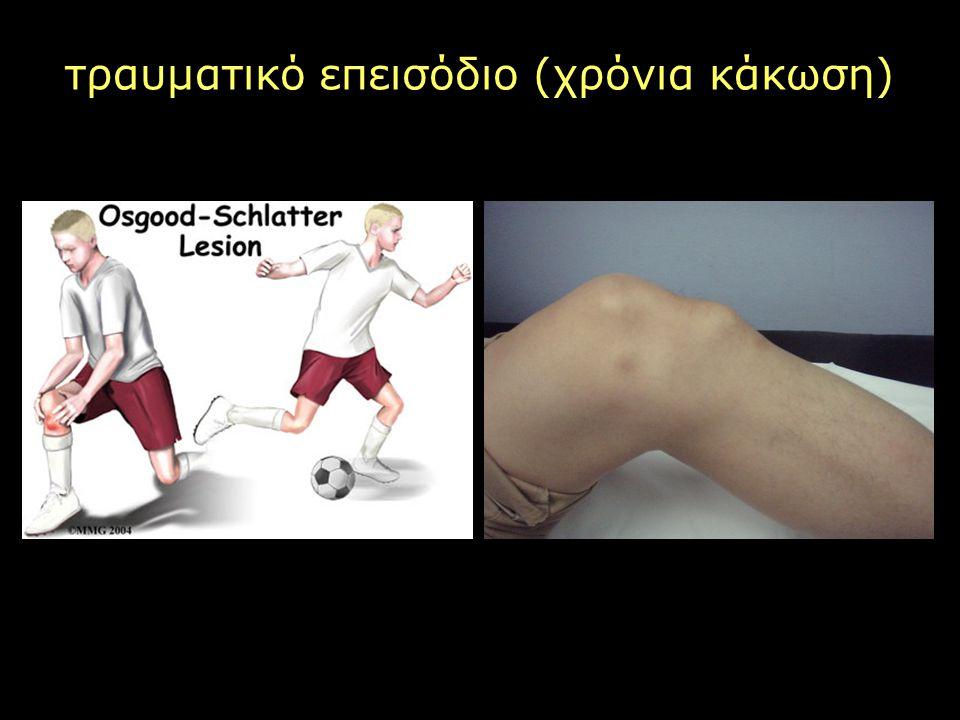τραυματικό επεισόδιο (χρόνια κάκωση)