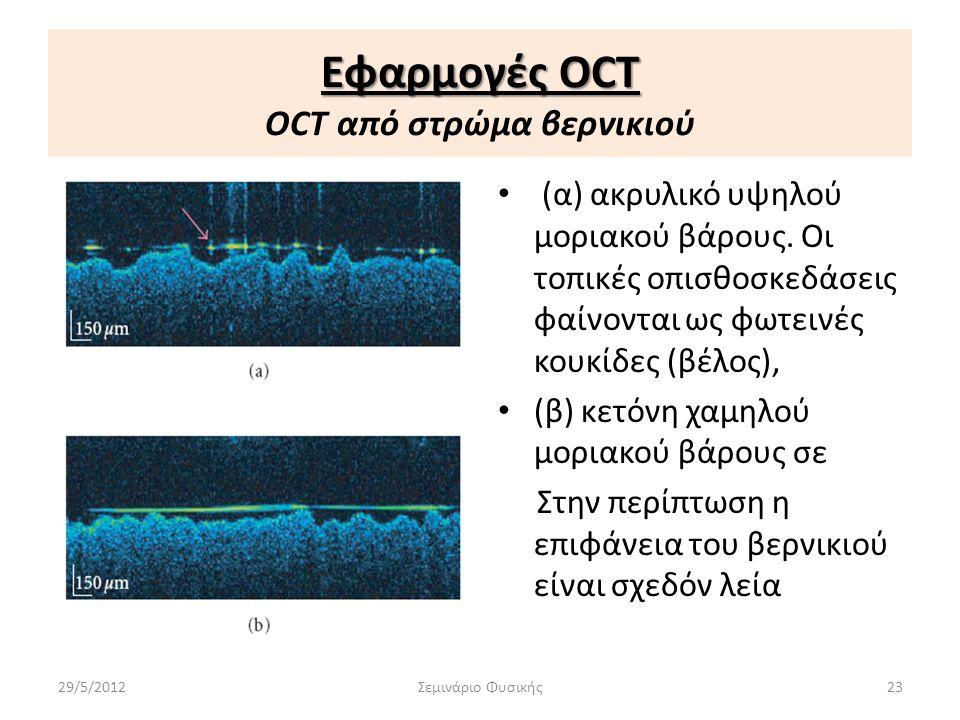 Εφαρμογές OCT OCT από στρώμα βερνικιού