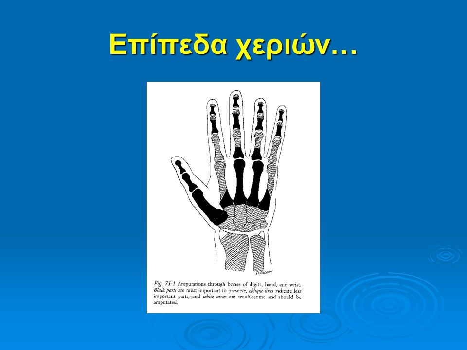 Επίπεδα χεριών…