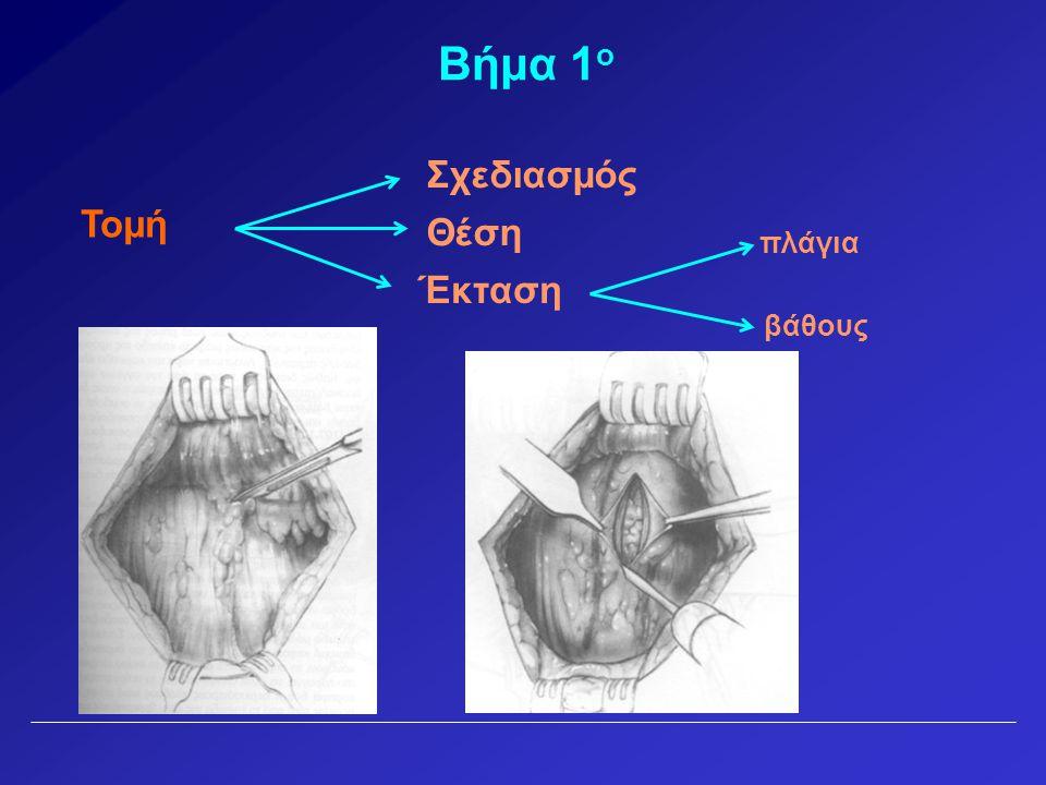 Βήμα 1ο Σχεδιασμός Τομή Θέση πλάγια Έκταση βάθους