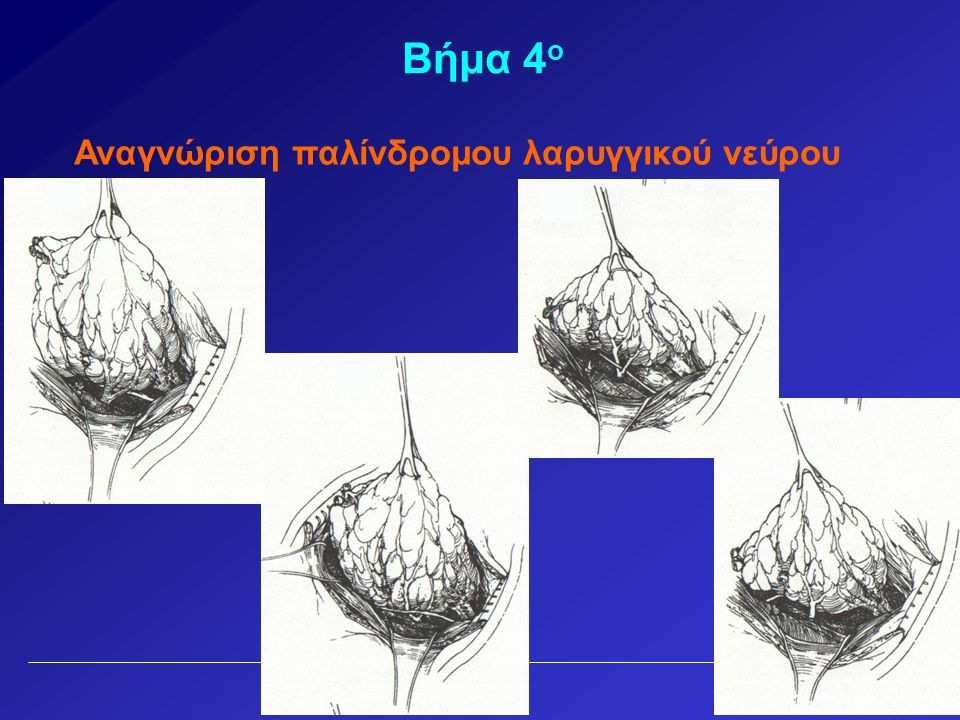 Βήμα 4ο Αναγνώριση παλίνδρομου λαρυγγικού νεύρου