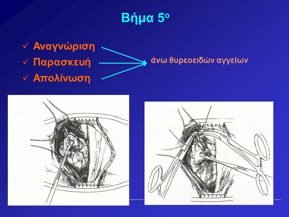 Βήμα 5ο Αναγνώριση Παρασκευή άνω θυρεοειδών αγγείων Απολίνωση