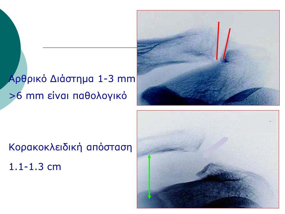 Αρθρικό Διάστημα 1-3 mm >6 mm είναι παθολογικό Κορακοκλειδική απόσταση 1.1-1.3 cm