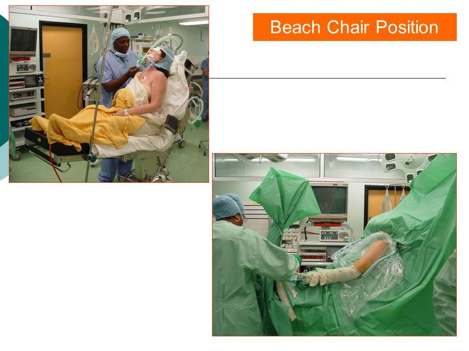 Beach Chair Position