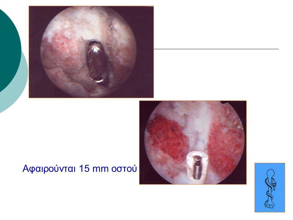 Αφαιρούνται 15 mm οστού