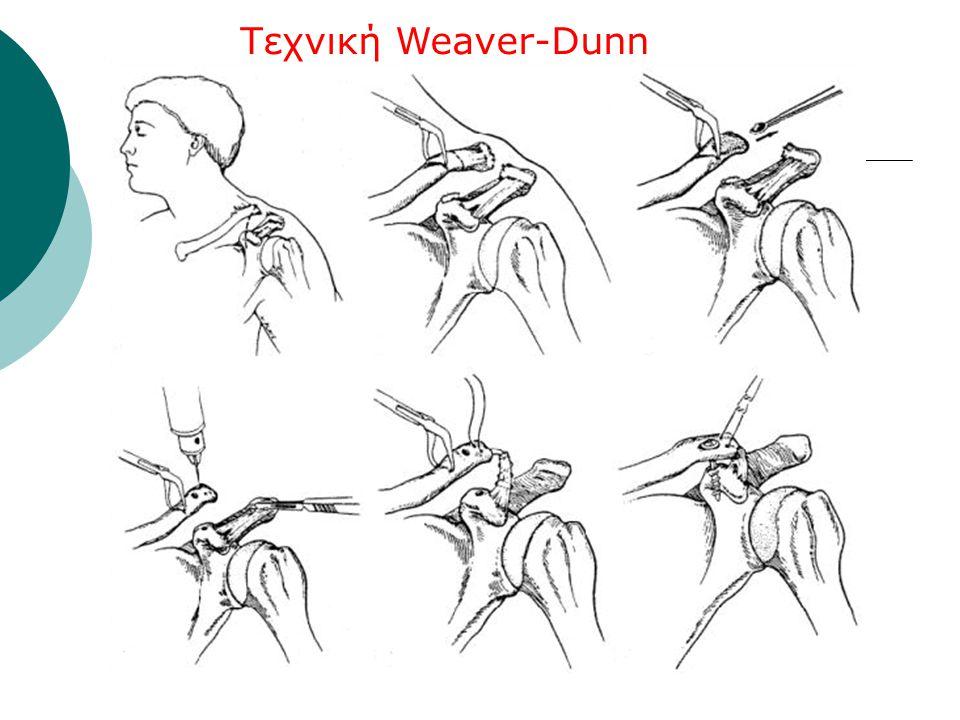 Τεχνική Weaver-Dunn