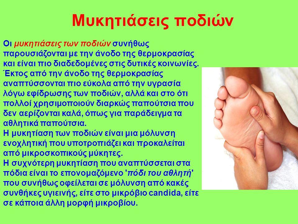 Μυκητιάσεις ποδιών
