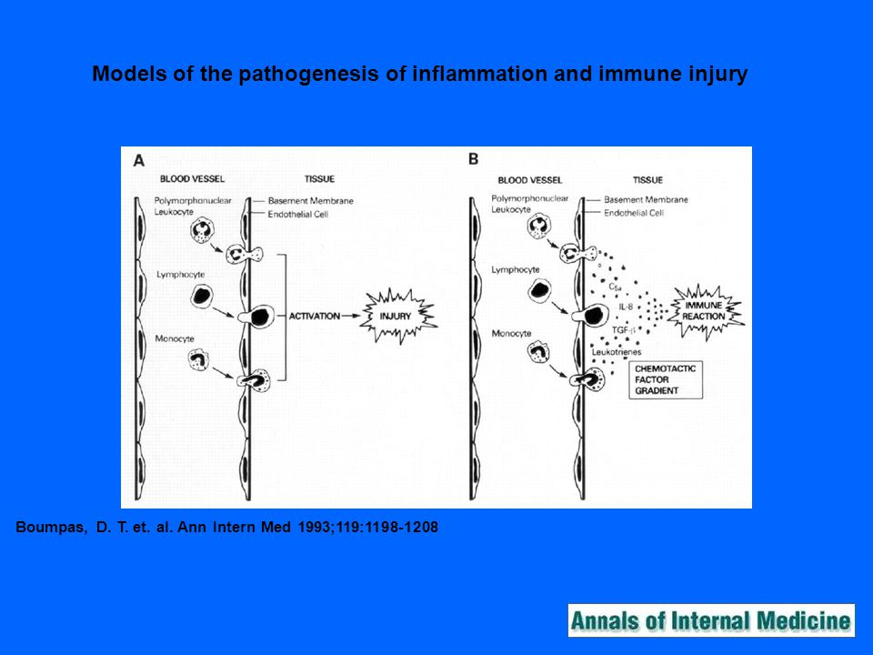 Models of the pathogenesis of inflammation and immune injury