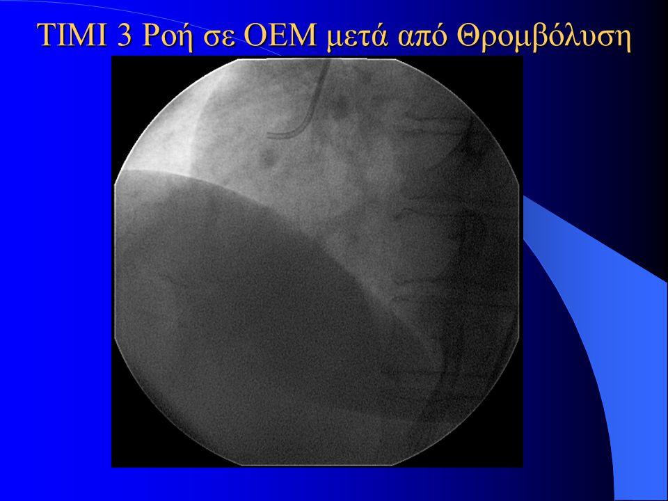 ΤΙΜΙ 3 Ροή σε ΟΕΜ μετά από Θρομβόλυση