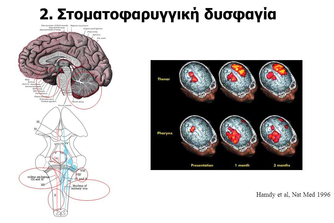 2. Στοματοφαρυγγική δυσφαγία