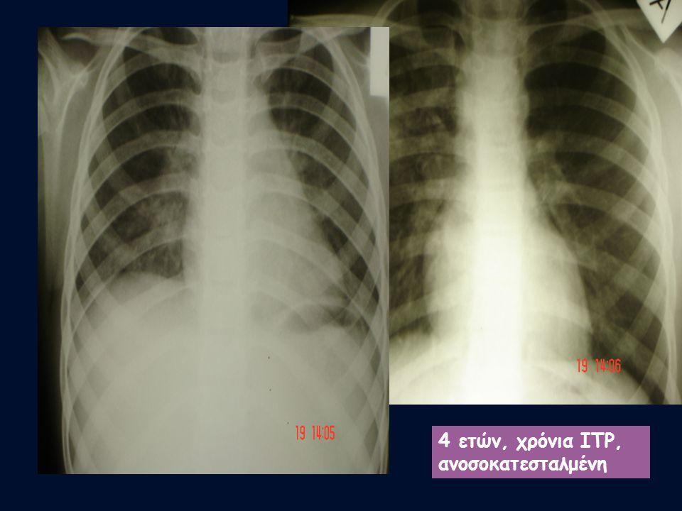 Επιπλοκή-πνευμονία 7 παιδιά Μέση ηλικία: 6,5 έτη