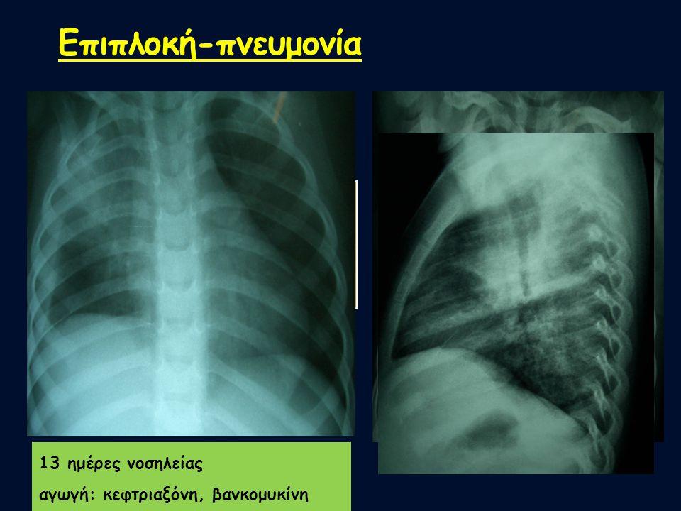 Επιπλοκή-πνευμονία Ενδείξεις μικροβιακής πνευμονίας